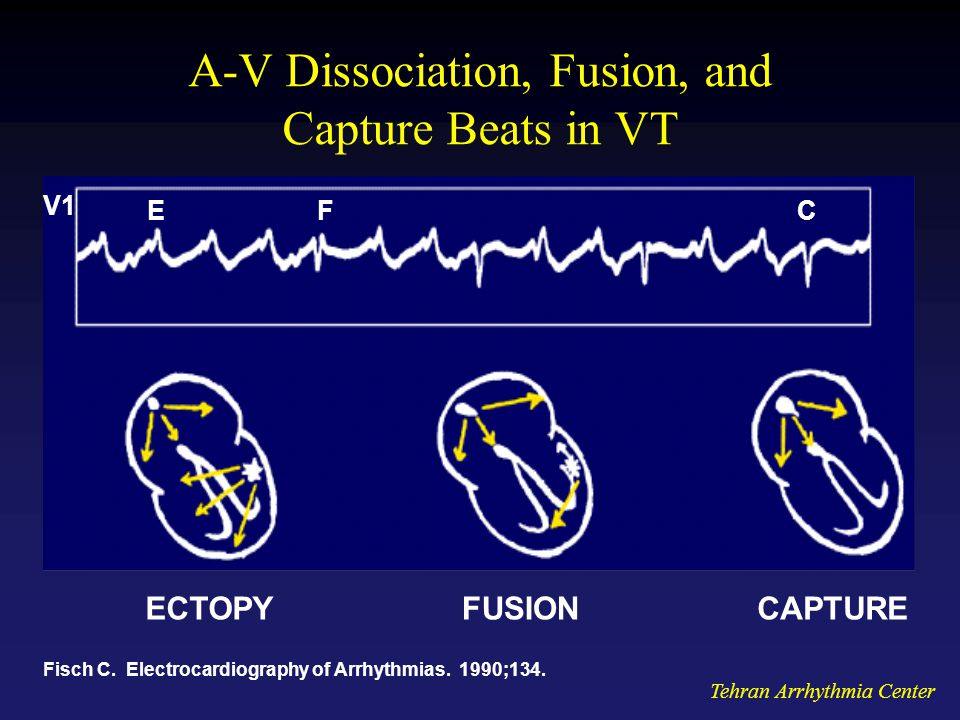 A-V Dissociation, Fusion, and Capture Beats in VT