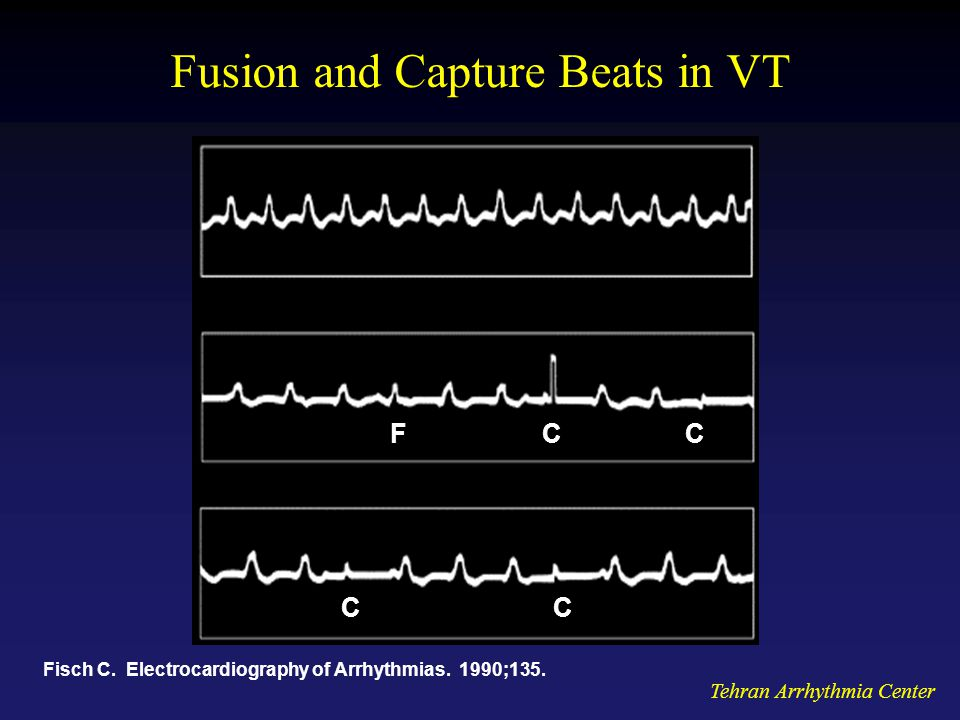 Fusion and Capture Beats in VT