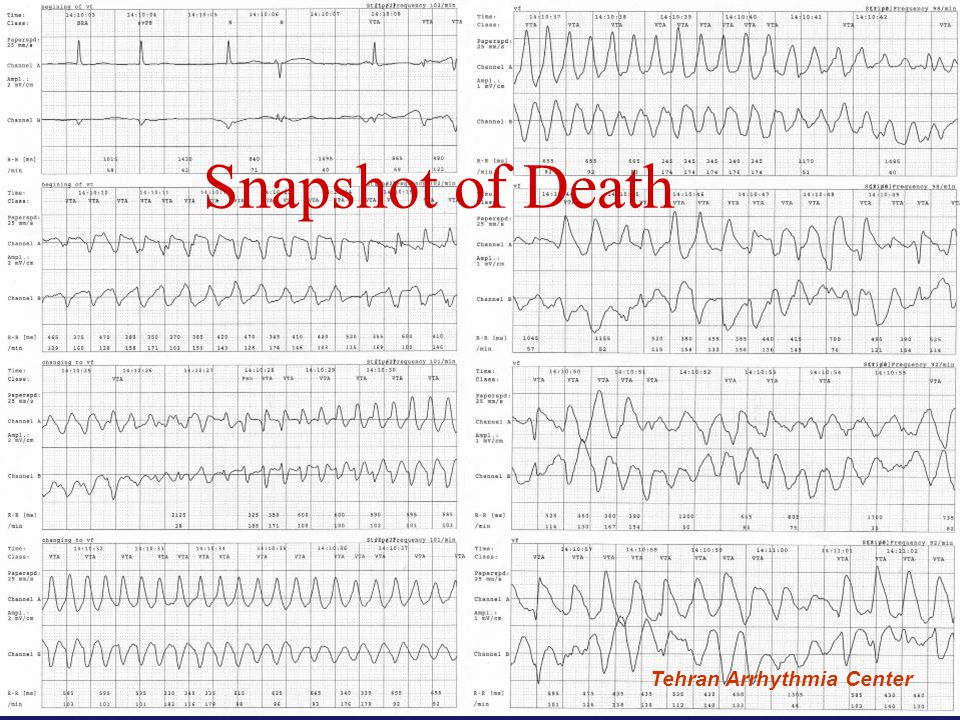 Snapshot of Death Tehran Arrhythmia Center Tehran Arrhythmia Center