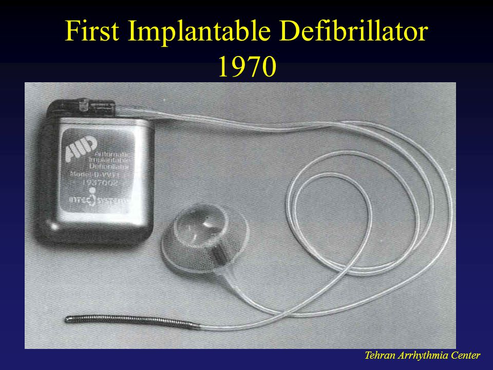 First Implantable Defibrillator 1970