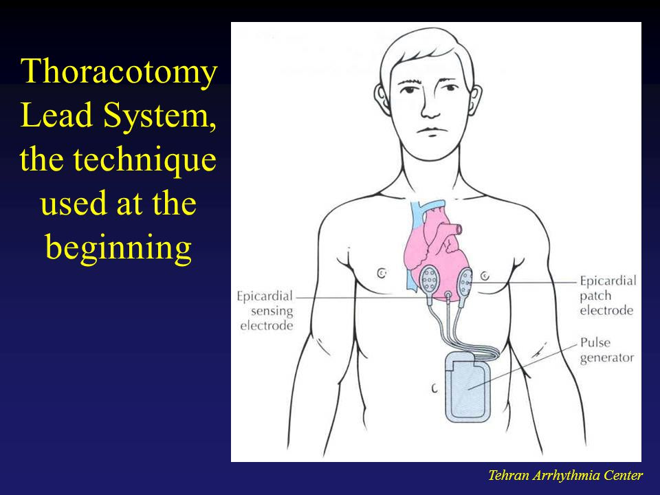 Thoracotomy Lead System, the technique used at the beginning