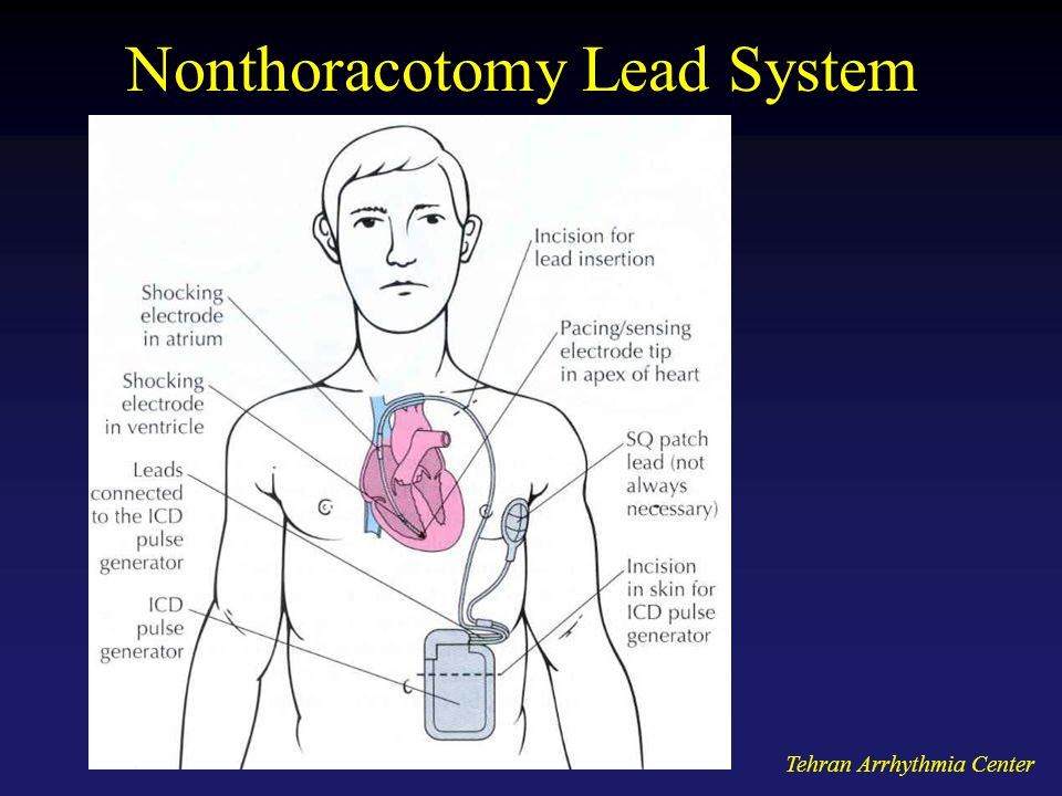 Nonthoracotomy Lead System