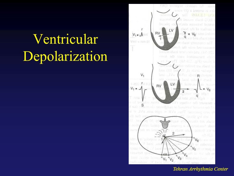 Ventricular Depolarization