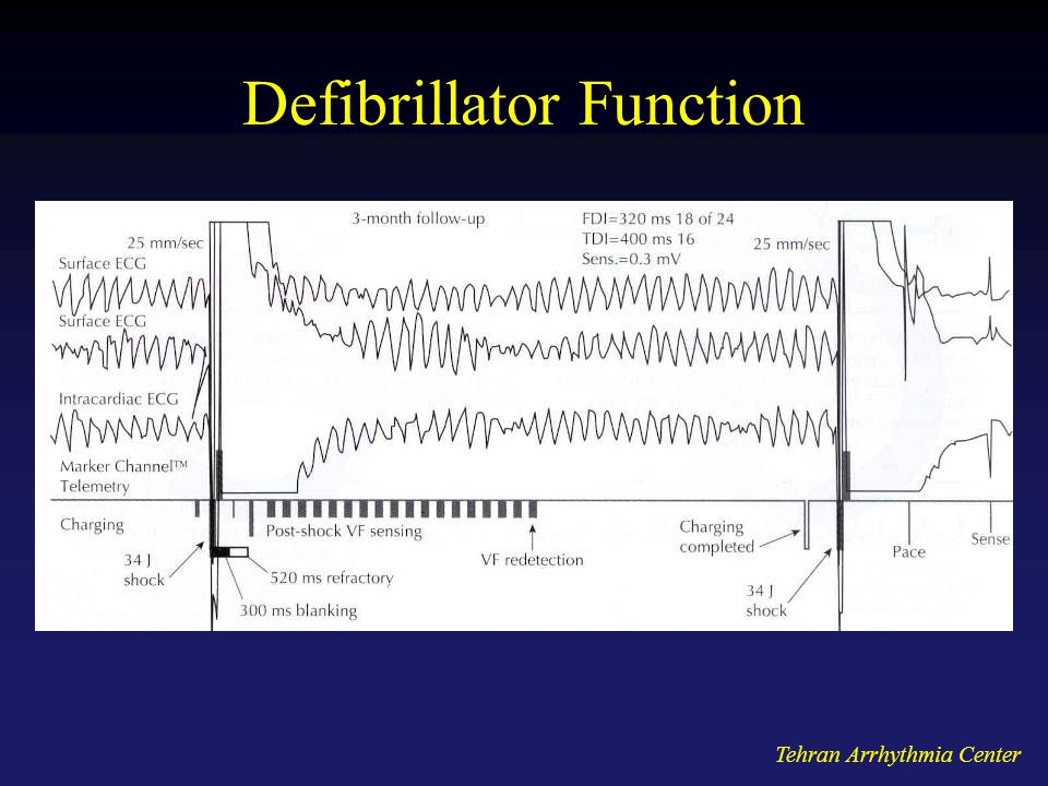 Defibrillator Function