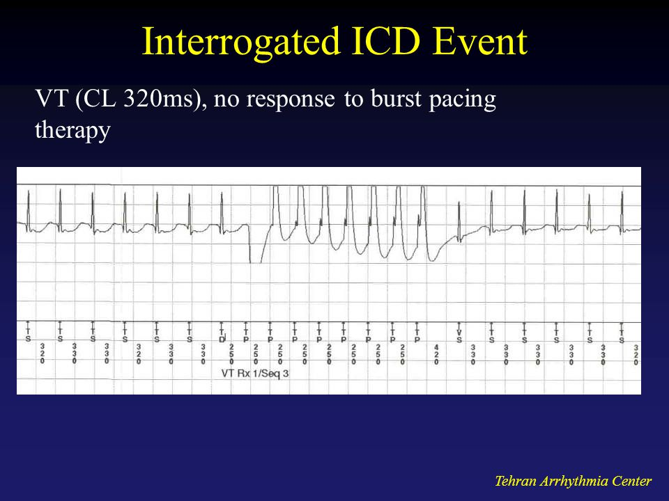 Interrogated ICD Event