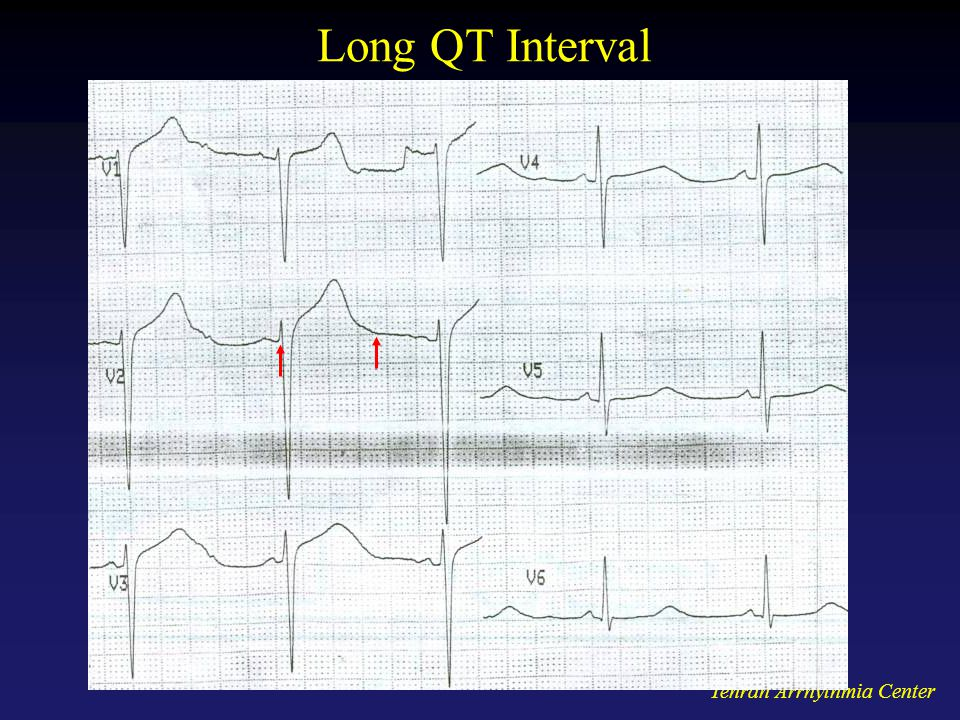 Long QT Interval Tehran Arrhythmia Center