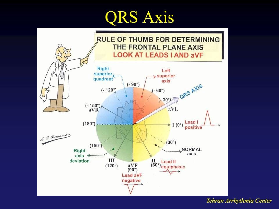 QRS Axis Tehran Arrhythmia Center