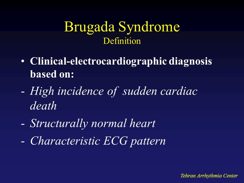 Brugada Syndrome Definition