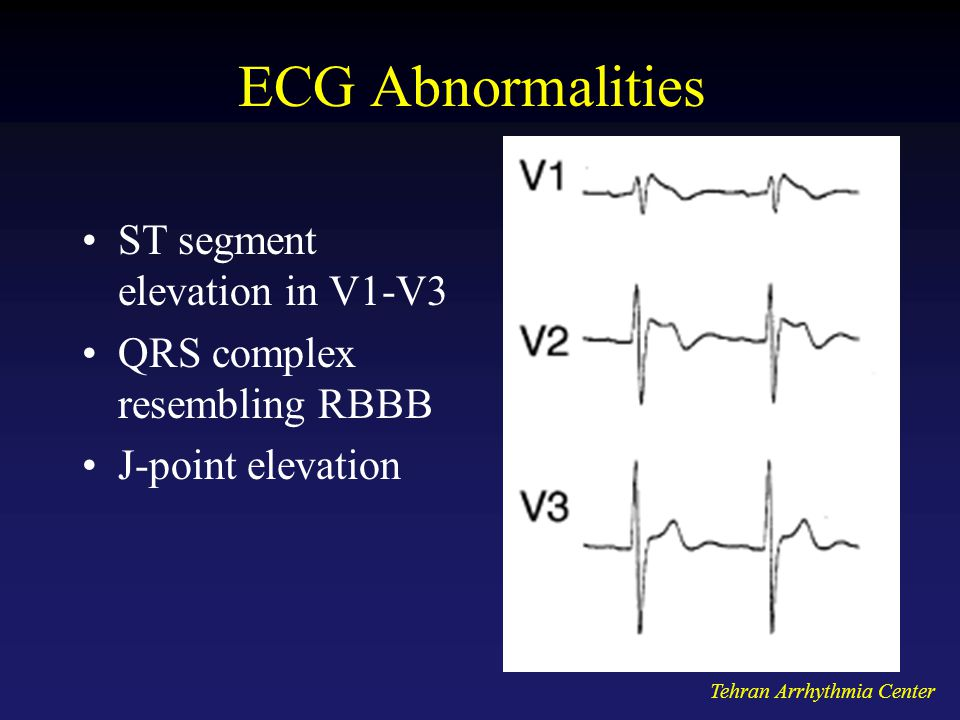 ECG Abnormalities ST segment elevation in V1-V3