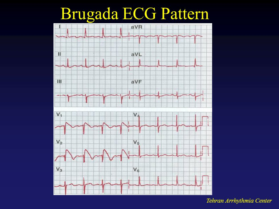 Brugada ECG Pattern Tehran Arrhythmia Center
