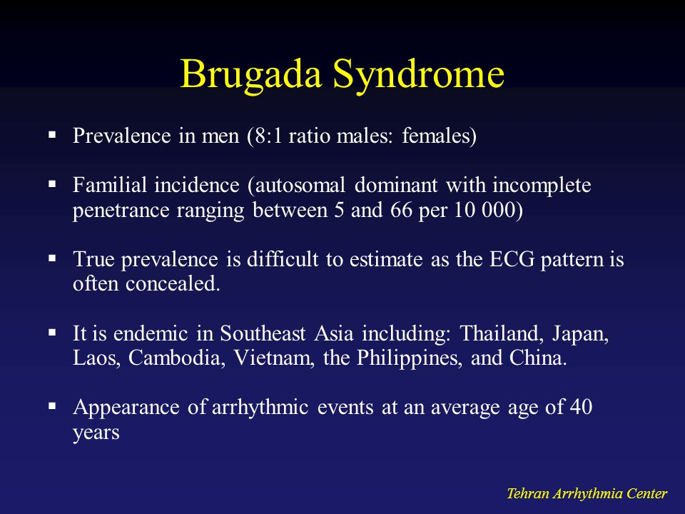 Brugada Syndrome Prevalence in men (8:1 ratio males: females)