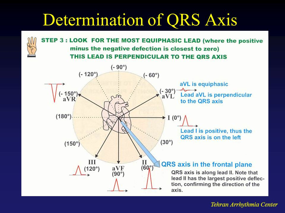 Determination of QRS Axis