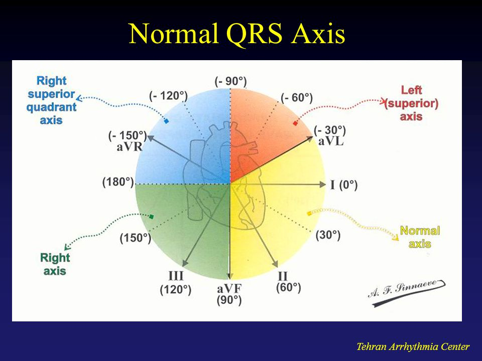 Normal QRS Axis Tehran Arrhythmia Center