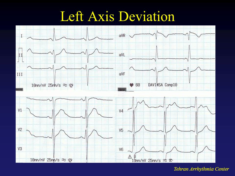 Left Axis Deviation Tehran Arrhythmia Center