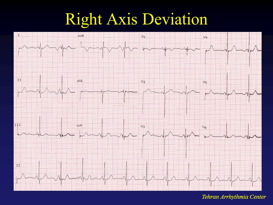 Right Axis Deviation Tehran Arrhythmia Center