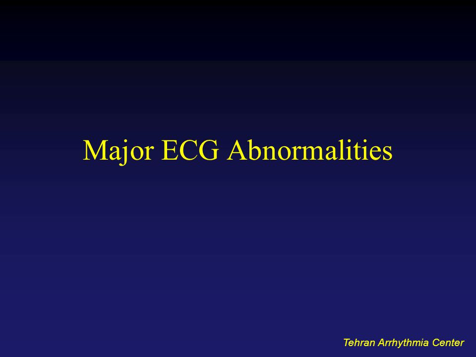 Major ECG Abnormalities