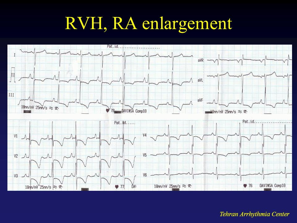 RVH, RA enlargement Tehran Arrhythmia Center