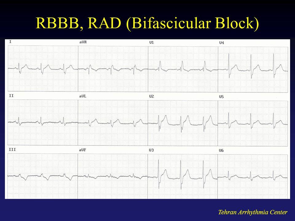 RBBB, RAD (Bifascicular Block)