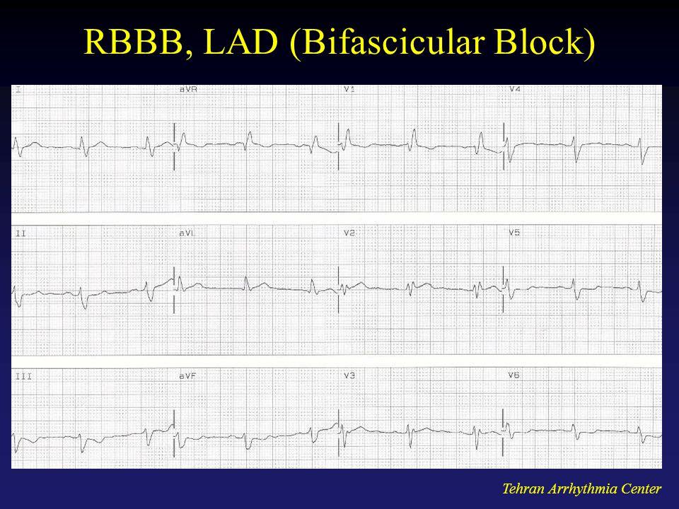RBBB, LAD (Bifascicular Block)