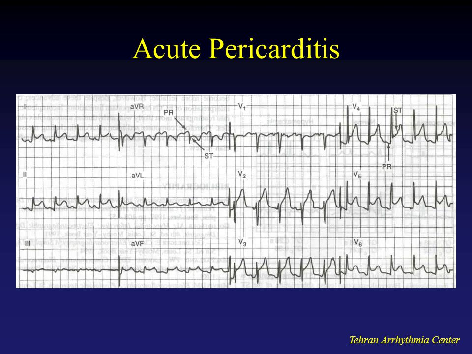 Acute Pericarditis Tehran Arrhythmia Center