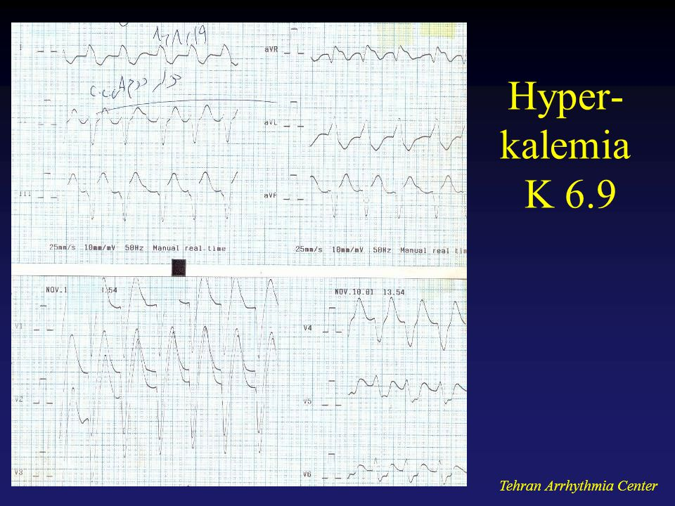 Hyper-kalemia K 6.9 Tehran Arrhythmia Center
