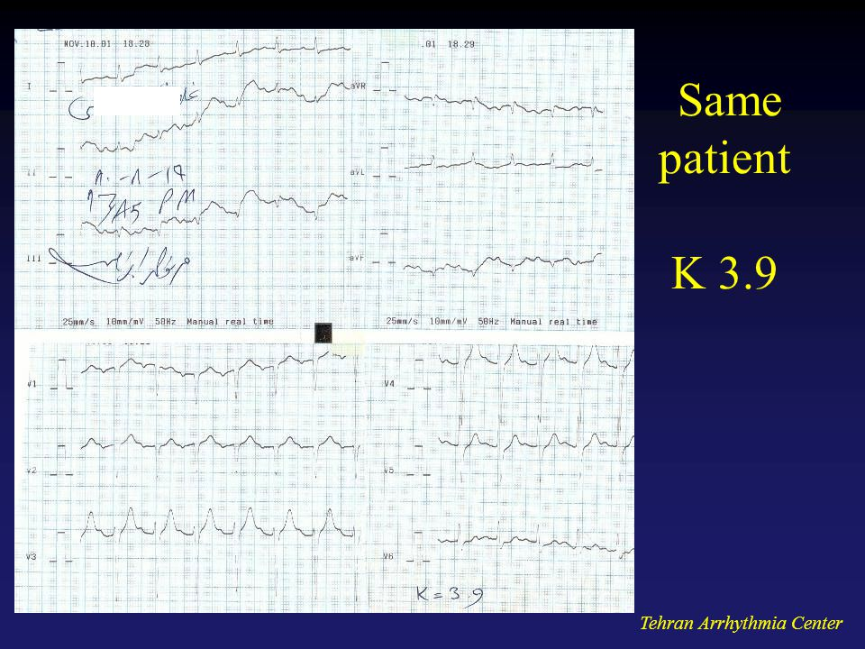 Same patient K 3.9 Tehran Arrhythmia Center