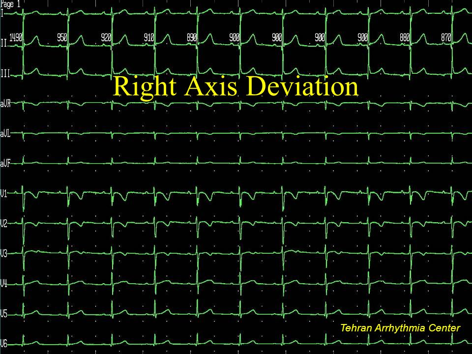 Right Axis Deviation Tehran Arrhythmia Center Tehran Arrhythmia Center