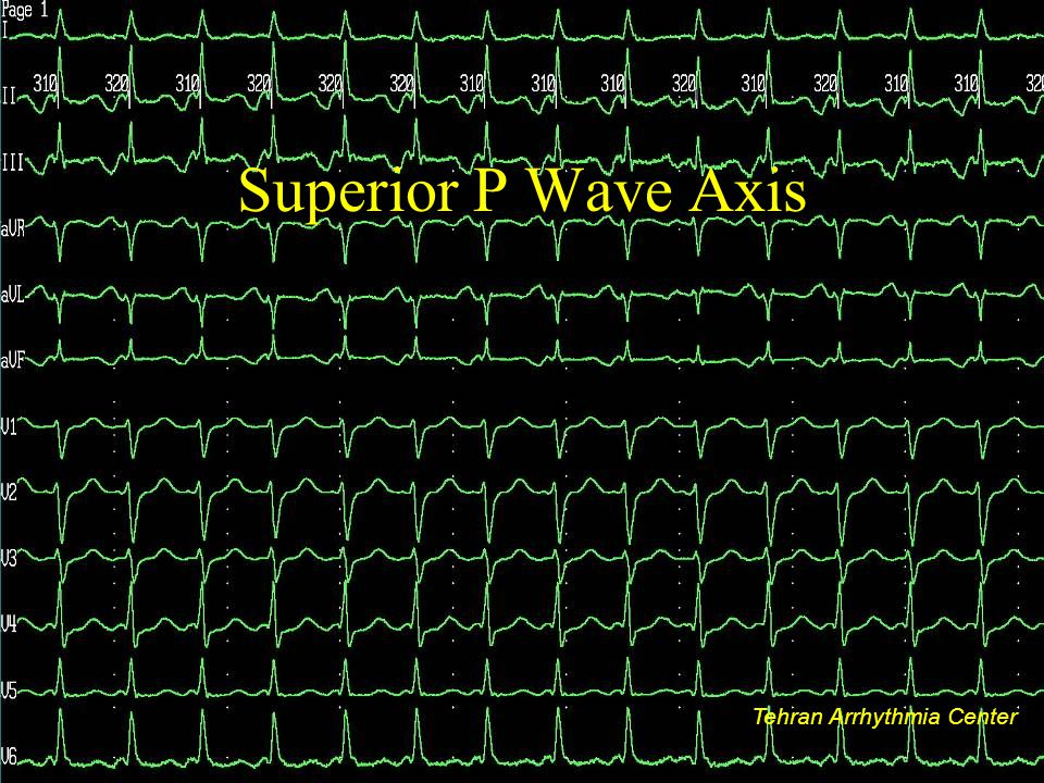 Superior P Wave Axis Tehran Arrhythmia Center Tehran Arrhythmia Center