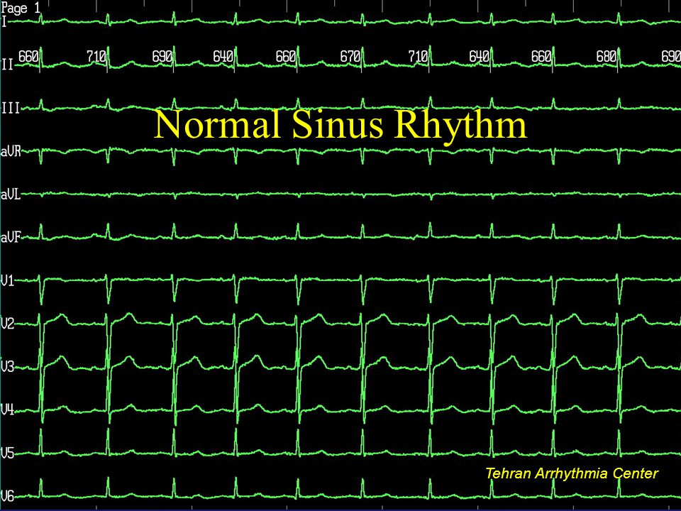 Normal Sinus Rhythm Tehran Arrhythmia Center Tehran Arrhythmia Center