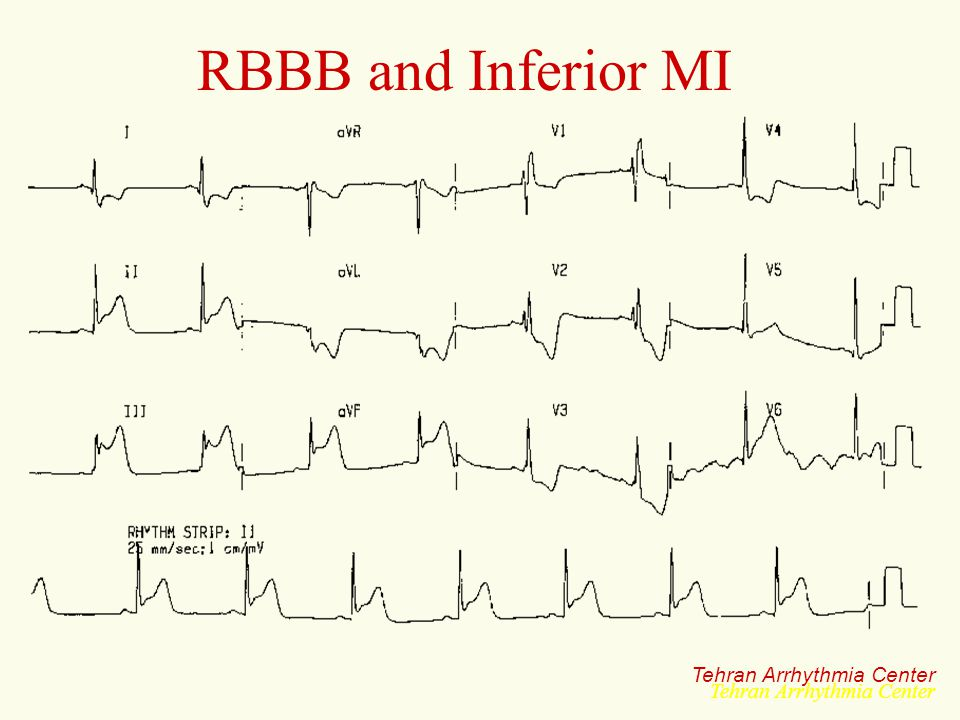 RBBB and Inferior MI Tehran Arrhythmia Center Tehran Arrhythmia Center