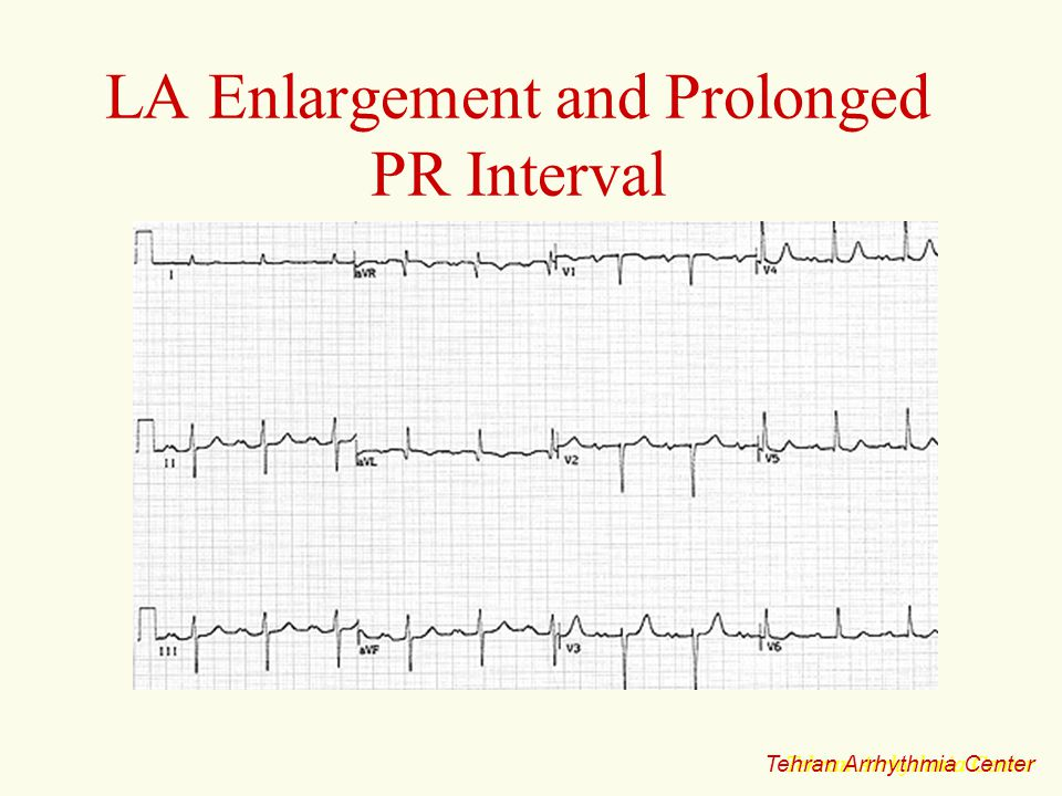 LA Enlargement and Prolonged PR Interval