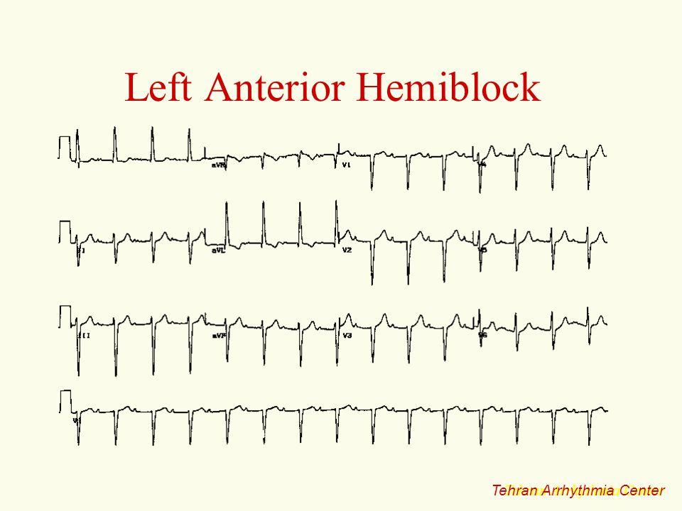 Left Anterior Hemiblock