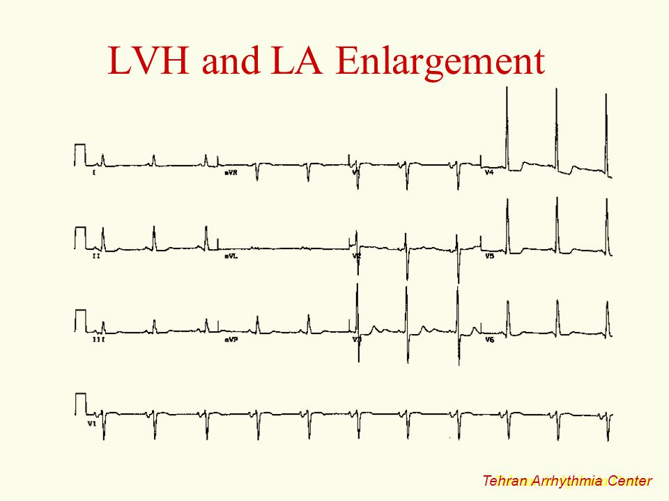 LVH and LA Enlargement Tehran Arrhythmia Center