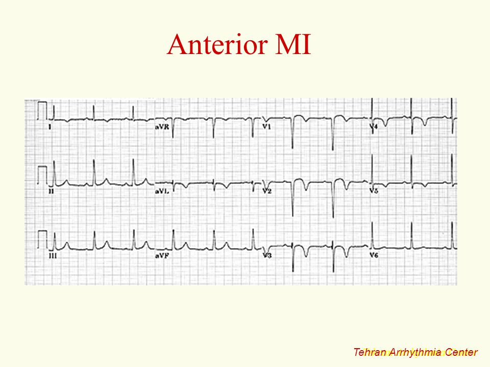 Anterior MI Tehran Arrhythmia Center Tehran Arrhythmia Center