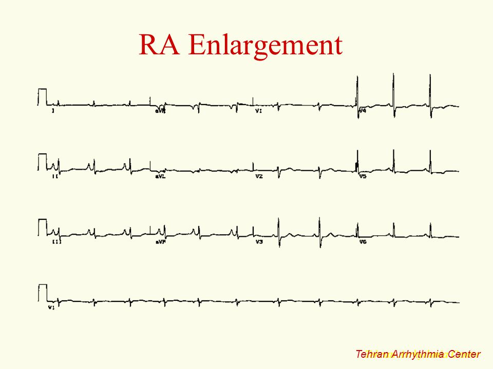RA Enlargement Tehran Arrhythmia Center Tehran Arrhythmia Center