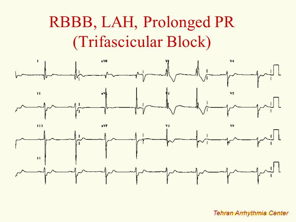 RBBB, LAH, Prolonged PR (Trifascicular Block)