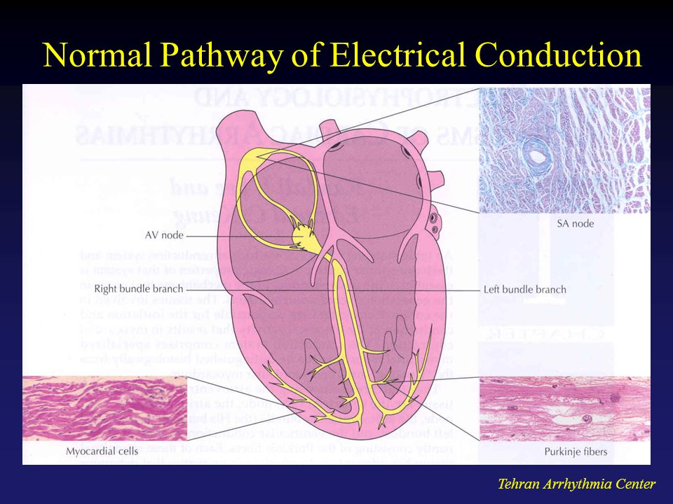 Normal Pathway of Electrical Conduction