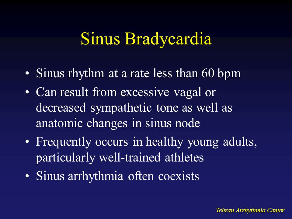 Sinus Bradycardia Sinus rhythm at a rate less than 60 bpm