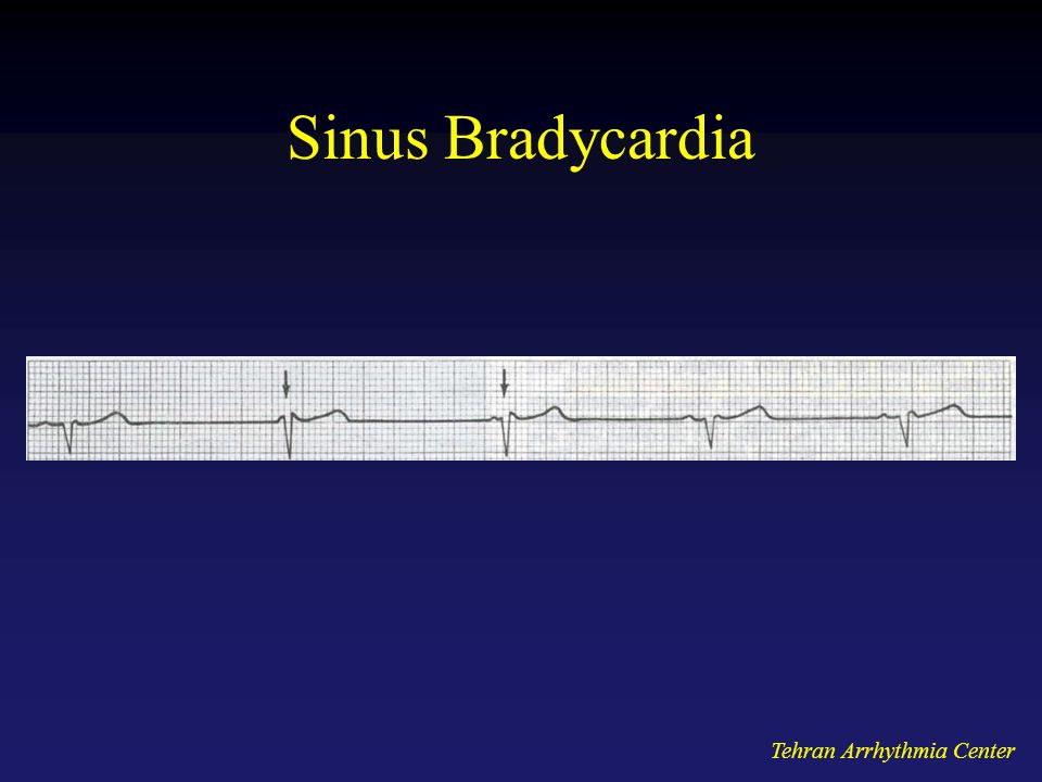 Sinus Bradycardia Tehran Arrhythmia Center