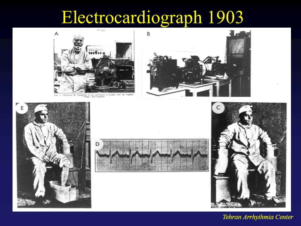 Electrocardiograph 1903 Tehran Arrhythmia Center