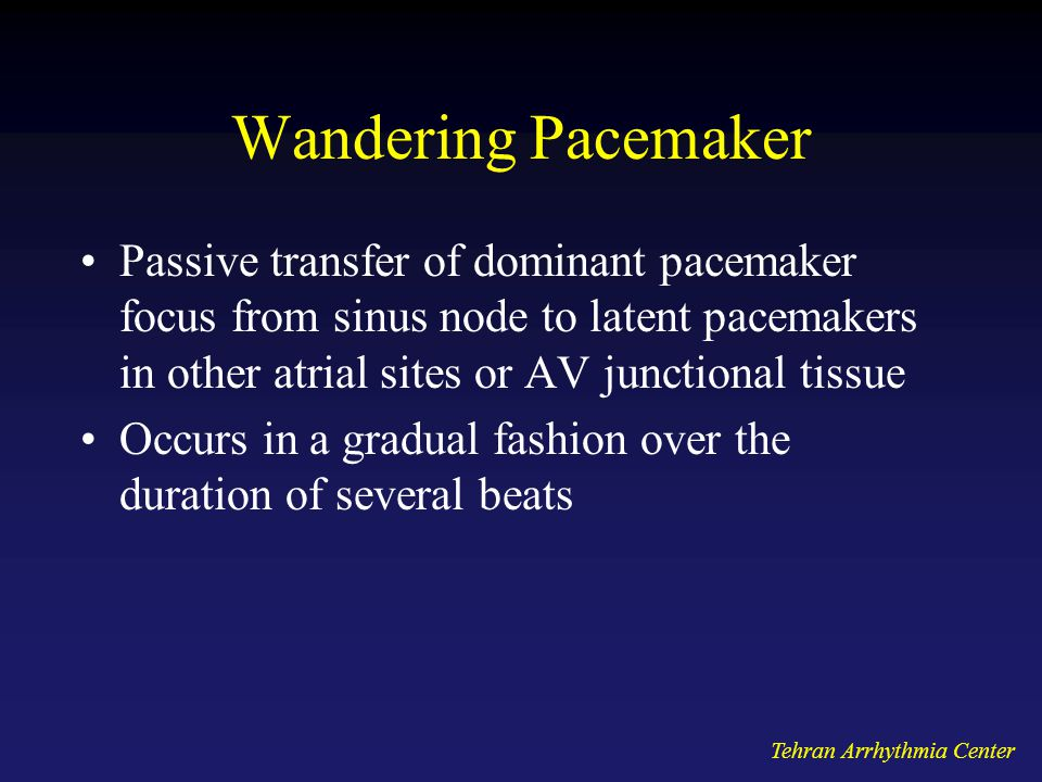 Wandering Pacemaker Passive transfer of dominant pacemaker focus from sinus node to latent pacemakers in other atrial sites or AV junctional tissue.