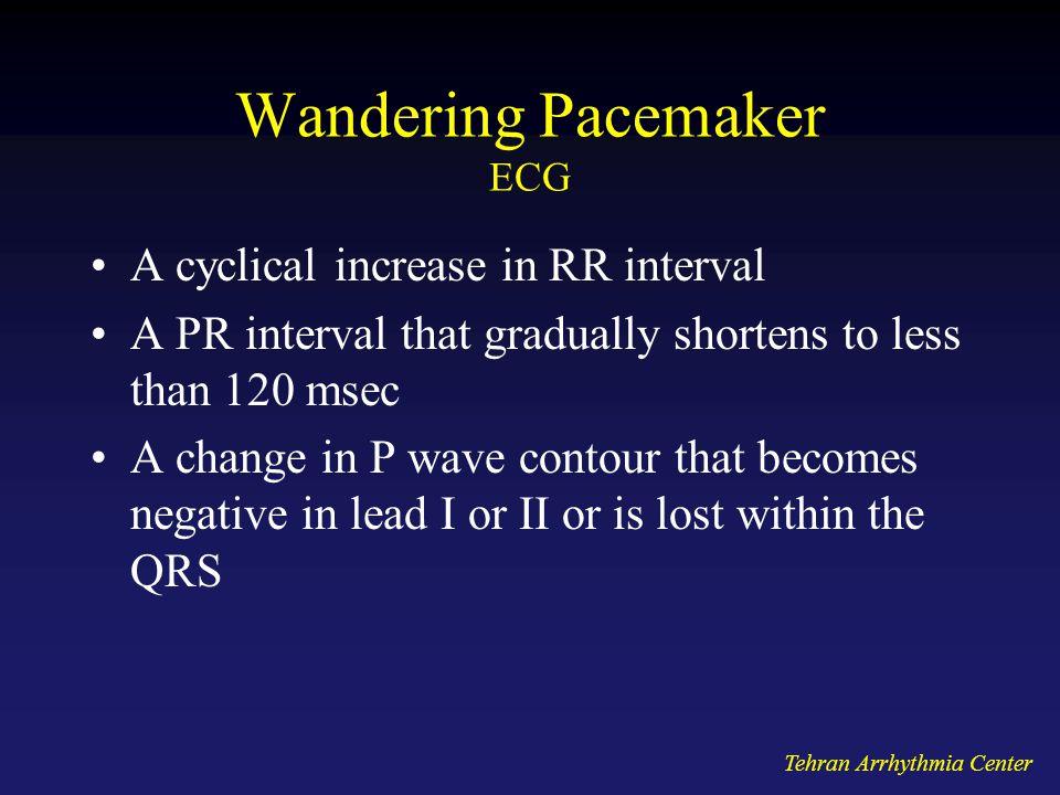 Wandering Pacemaker ECG