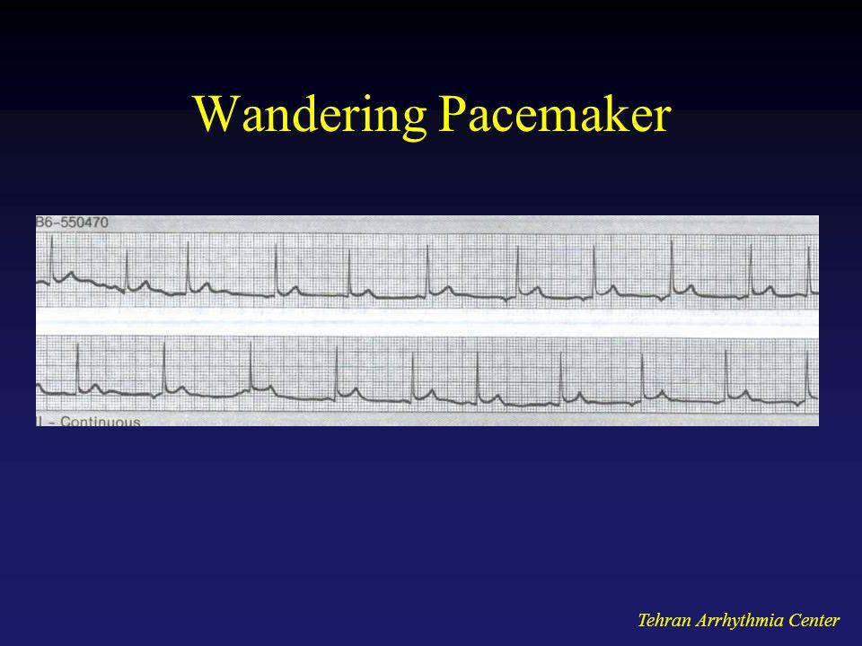 Wandering Pacemaker Tehran Arrhythmia Center
