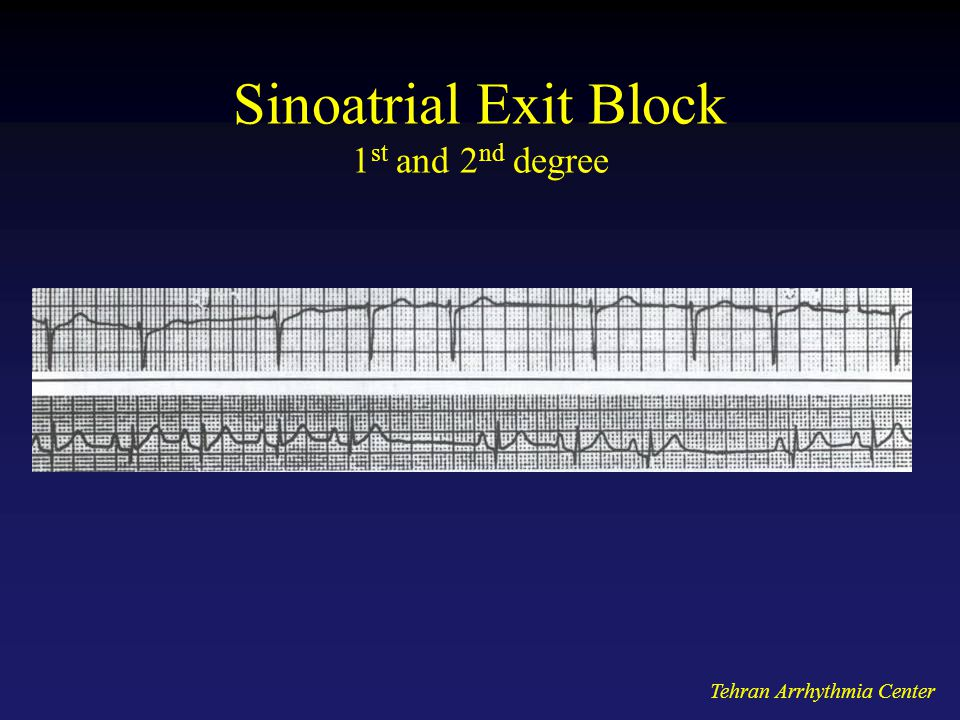 Sinoatrial Exit Block 1st and 2nd degree