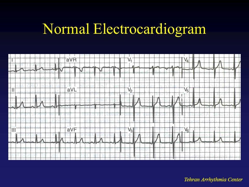 Normal Electrocardiogram
