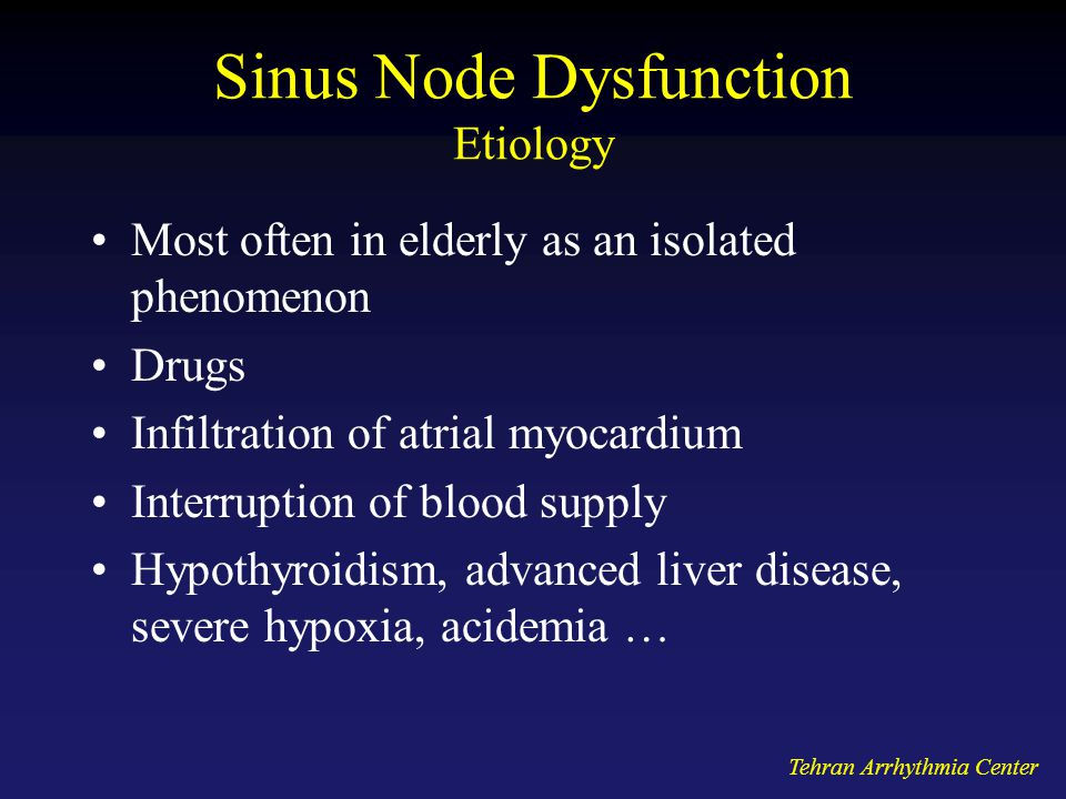 Sinus Node Dysfunction Etiology