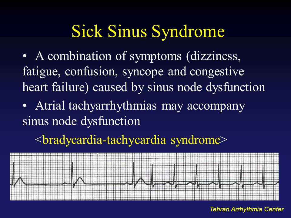 Sick Sinus Syndrome A combination of symptoms (dizziness, fatigue, confusion, syncope and congestive heart failure) caused by sinus node dysfunction.