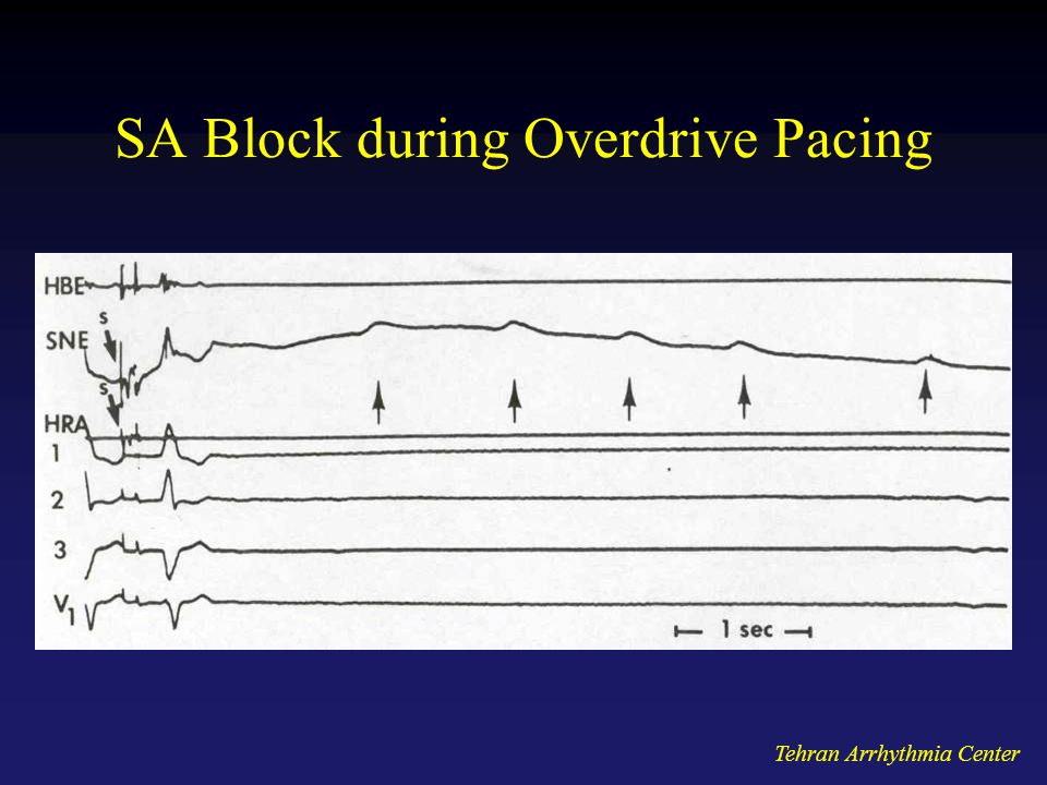 SA Block during Overdrive Pacing
