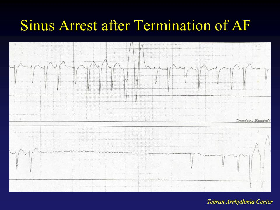 Sinus Arrest after Termination of AF