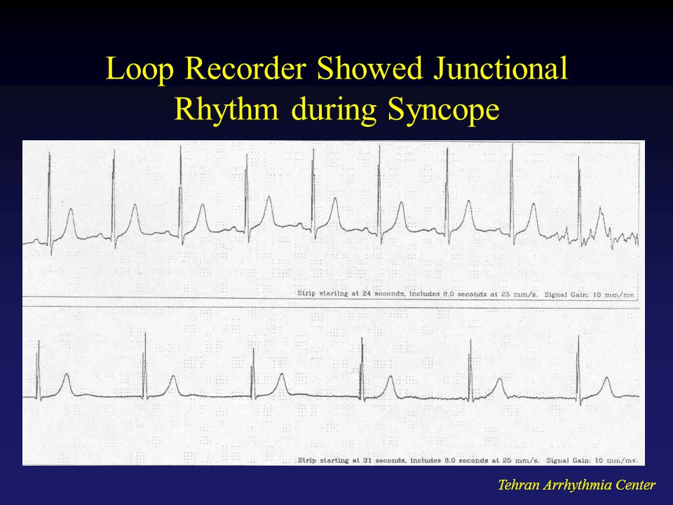 Loop Recorder Showed Junctional Rhythm during Syncope
